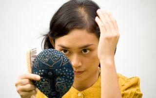 Выпадают волосы после 30 лет?